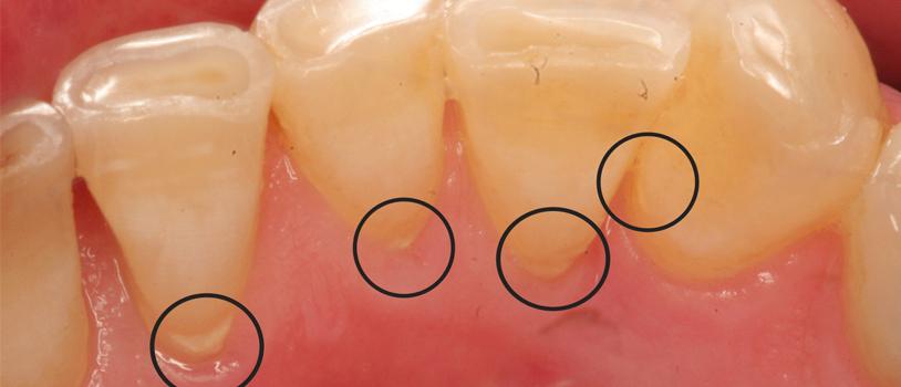 Smile Designing in Delhi, Dentists in delhi, Dental implant clinic delhi, Painless root canal