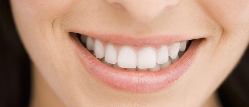 Teeth filling treatment in delhi, dental clinic, dental care, dental health