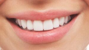 teeth whitening in delhi, teeth cleaning, whitening teeth with braces, best teeth doctor in delhi
