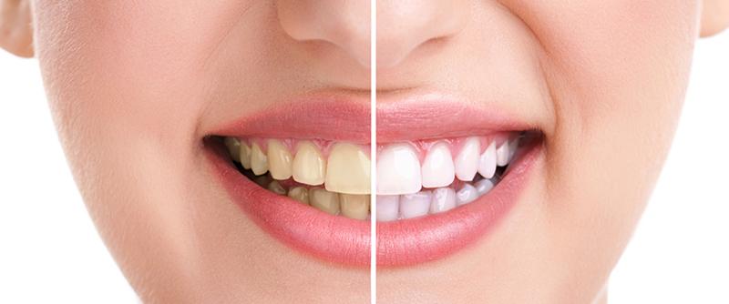 Cost Effective Teeth Whitening Treatment In Delhi Dr Bhutani