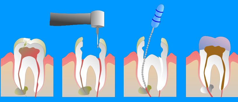 Painless Root Canal in Delhi, Painless Root Canal in India, Painless root canal, Dental clinic india, best dental clinic, dentist in delhi, best dental clinic in delhi, dr bhutani dental clinic dr bhutani raja garden, pitampura, dental implant center