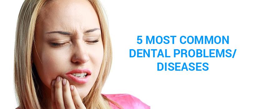Dental Clinic India, Dental Clinic, Dental care in Delhi