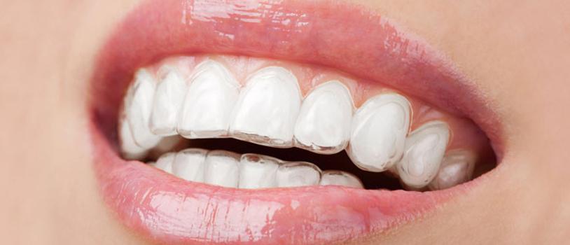 invisible teeth braces treatment in delhi, dentist in delhi, dental treatment in delhi