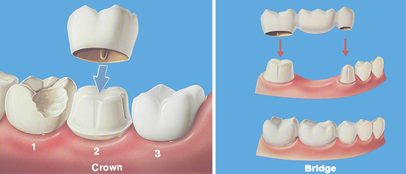 Dental treatment in delhi, Single Sitting RCT, Dental Implant Center In Delhi