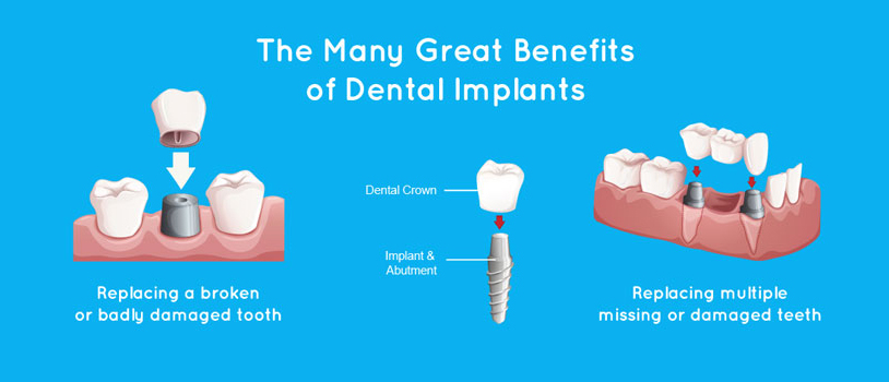 Dental Implant Center In Delhi, Best Dentist In Delhi, Implant Center In India
