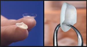 Dental Treatments in Delhi, Dental Clinic in Delhi, Dentist in Delhi
