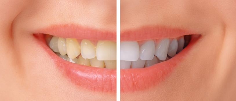 Teeth Whitening Treatment in Delhi, Teeth Doctor in Delhi,