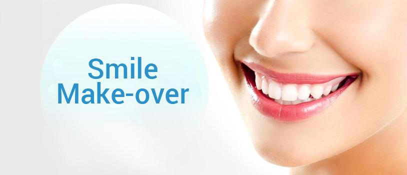 Bollywood Smile Makeover, full smile makeover, Smile Designing in Delhi, dental clinic in delhi, dental clinic in delhi