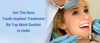 Get the Best Tooth Implant Treatment by Top Most Dentist in Delhi