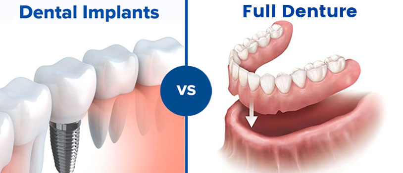 tooth implant, oral surgeon, dental implants, tooth replacement, dentist in delhi, dental clinic in delhi, partial dentures, full dentures, cosmetic dentistry