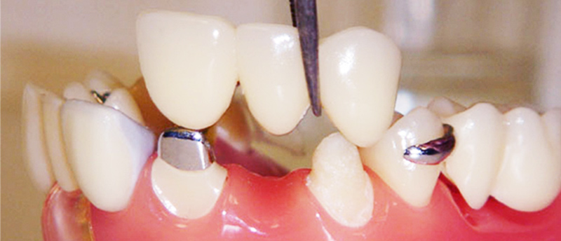 Cosmetic Dentistry, Dental Crown, Dental Implants, Tooth Implant, Implant Center In India, Best Dentist In Delhi, Dentist In Delhi, Dental Implant Center In Delhi, Dental Clinic India, Dental Clinic, Best Dental Implant Center