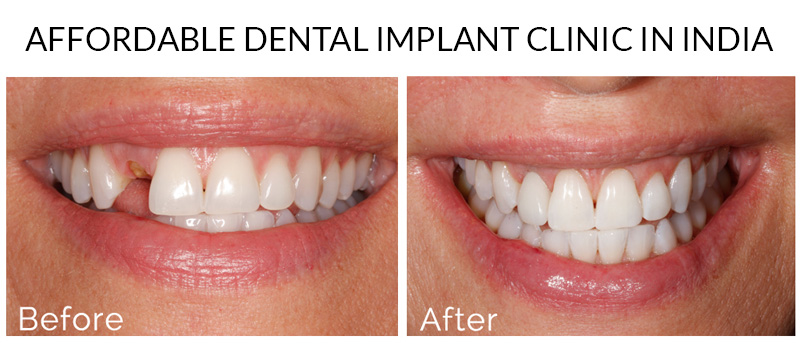 Dental Implants in Delhi, Best Dentist In Delhi, Dental Implant In Delhi, Dentist In Delhi, Dental Implant Clinic In India, Best Implant Dentist in Delhi, Dental Clinic in Delhi, Dental Implant Clinic