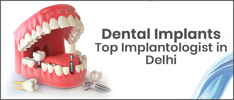 Implant Center In India, Dental Implant In Delhi, Dental Implant Center In Delhi, Best Dental Implant Center, Top Implantologist in Delhi, Best Dental Implant Center, Best Dentist In Delhi, Dental Clinic, Dental Clinic India, Dental Clinic in Delhi