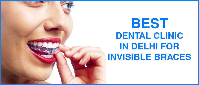 best dental clinic in delhi, best implant clinic in delhi, best dental implant clinic in india