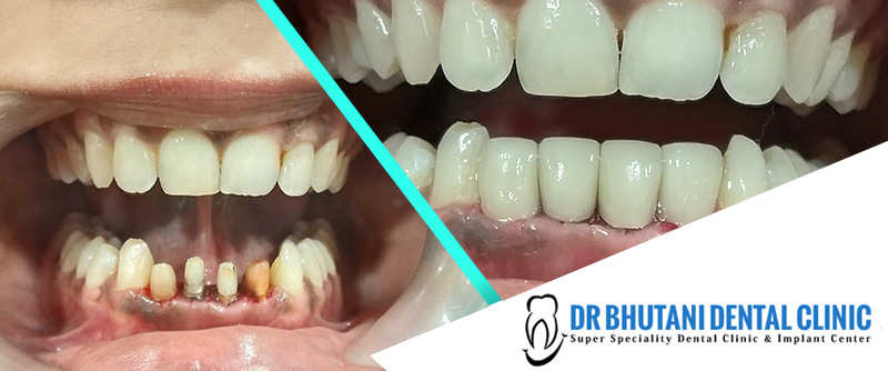 zirconia crown cost, zirconia dental crown, zirconia ceramic crown, dental clinic in Delhi, dentist in Delhi, best implant dentist in Delhi, best dentist in Delhi NCR, best dentist in west delhi