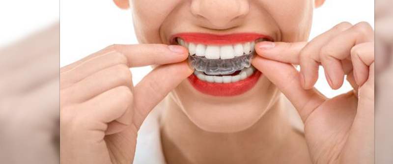 Invisalign braces cost in India, Invisalign cost in Delhi, clear braces, invisible braces, teeth straightening, dental clinic in Delhi, dentist in Delhi, dental implant clinic, dental treatments, dental aligners