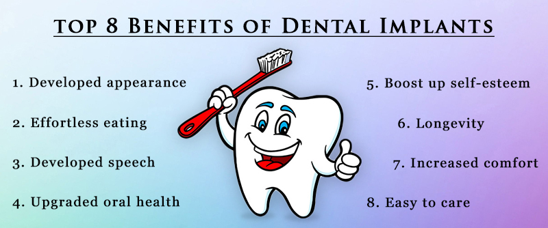 Top 8 Benefits of Dental Implants