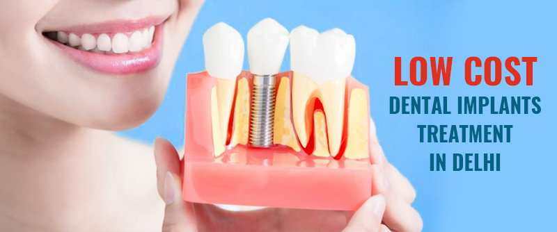 Dental Implants Treatment Cost in Delhi