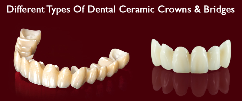 Best dentist in Delhi NCR, Dental bridges, Dental Ceramic Crowns, Dental Treatments,